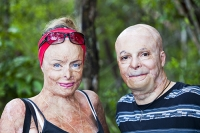 man;woman;face;features;skin;skin-graft;burn;burnt;burns-victim;bush-fire;victim;counselling;support;Peter-Hughes-Burns-Foundation;charity;damage;recovery;health;medical;Australia;disfigured